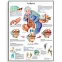 Εικόνα της Χάρτης αρθρίτιδας